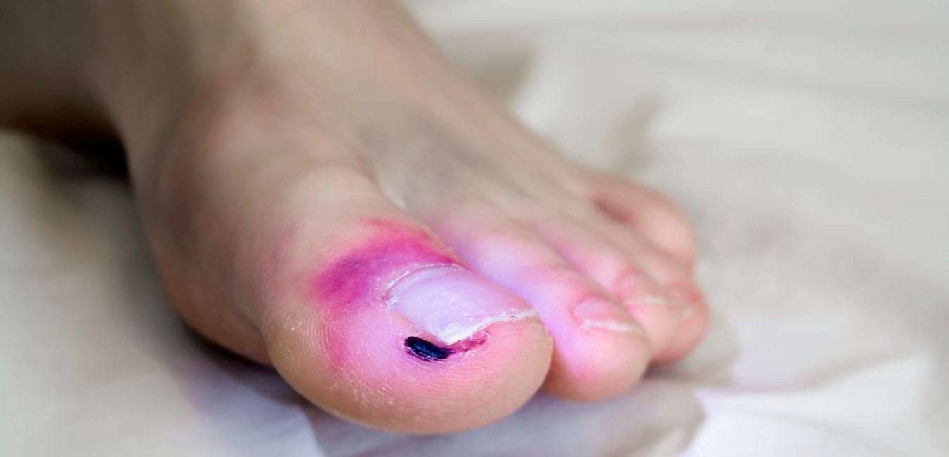 best treatment for pain in big toe